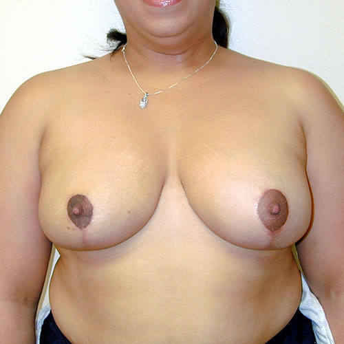 Breast Reduction 28 After Photo