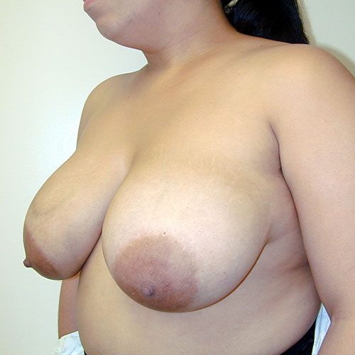 Breast Reduction 28 Before Photo