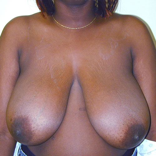 Breast Reduction 29 Before Photo
