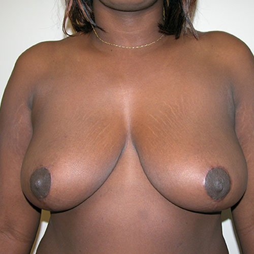 Breast Reduction 29 After Photo