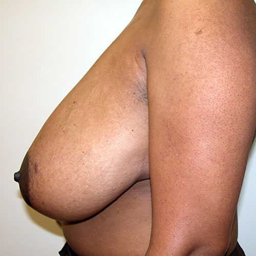 Breast Reduction 30 Before Photo