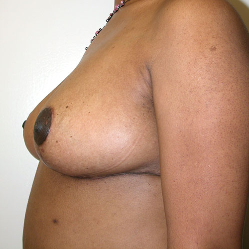 Breast Reduction 30 After Photo