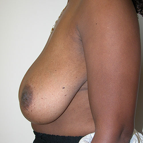 Breast Reduction 31 Before Photo