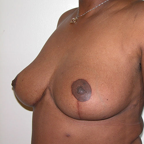 Breast Reduction 31 After Photo