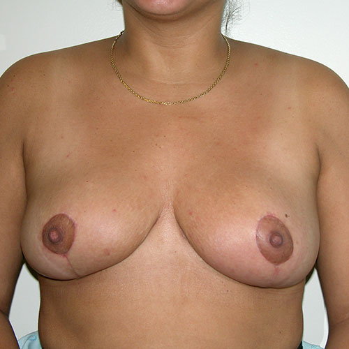 Breast Reduction 32 After Photo