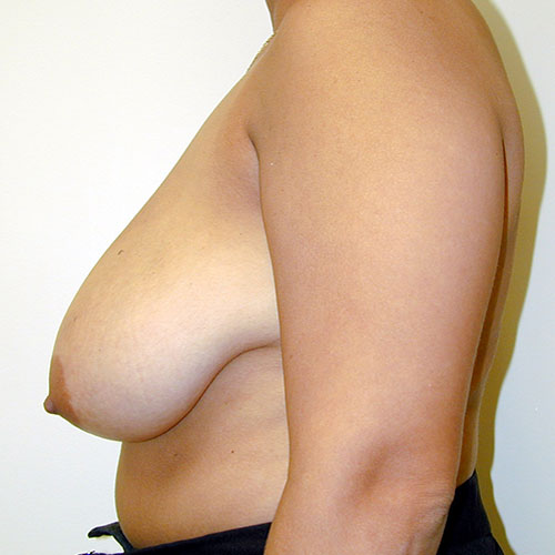 Breast Reduction 32 Before Photo