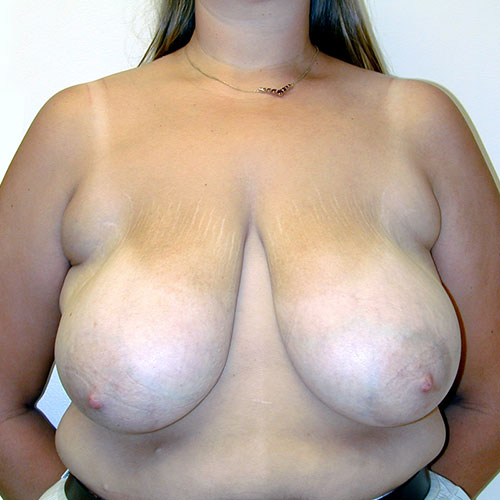 Breast Reduction 33 Before Photo