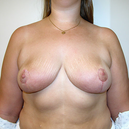 Breast Reduction 33 After Photo