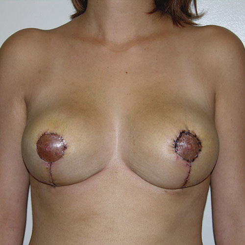 Breast Reduction 34 After Photo