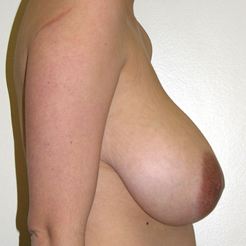 Breast Reduction 34 Before Photo