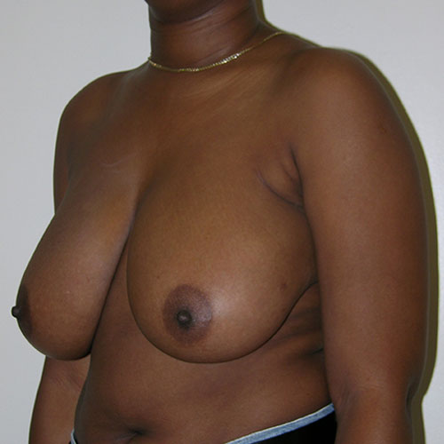 Breast Reduction 35 Before Photo