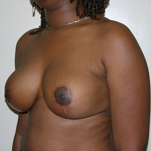 Breast Reduction 35 After Photo