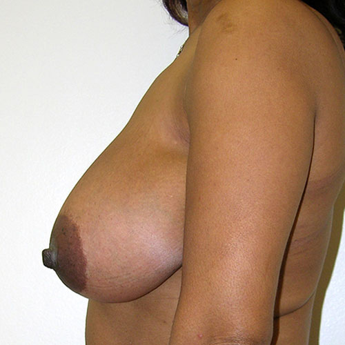 Breast Reduction 36 Before Photo