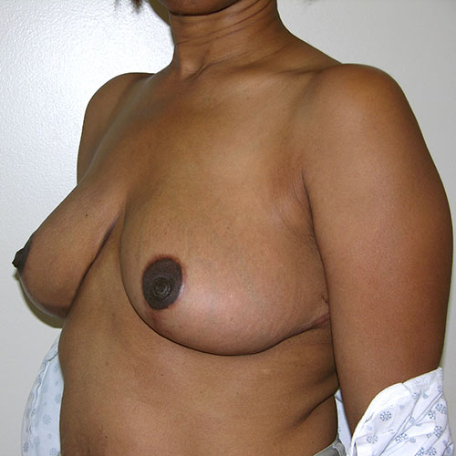 Breast Reduction 36 After Photo
