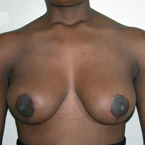 Breast Reduction 37 After Photo