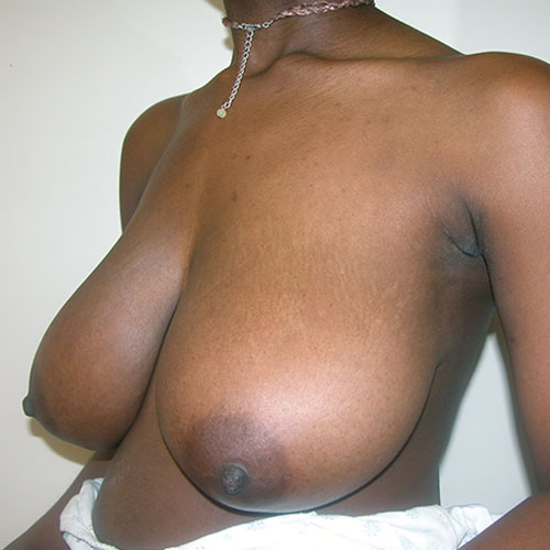 Breast Reduction 37 Before Photo