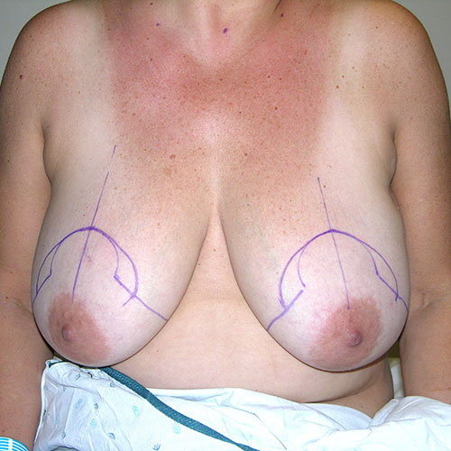 Breast Reduction 38 Before Photo