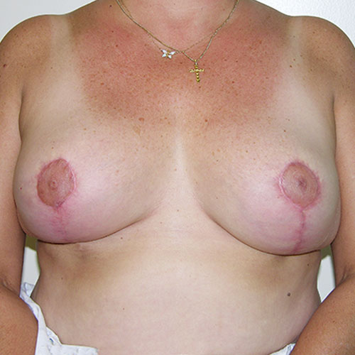 Breast Reduction 38 After Photo