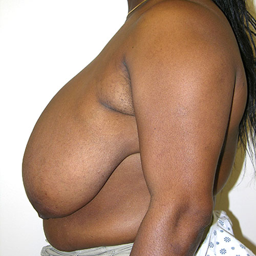 Breast Reduction 39 Before Photo