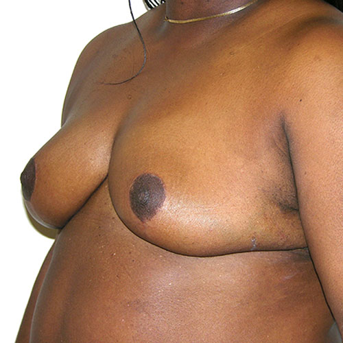 Breast Reduction 39 After Photo