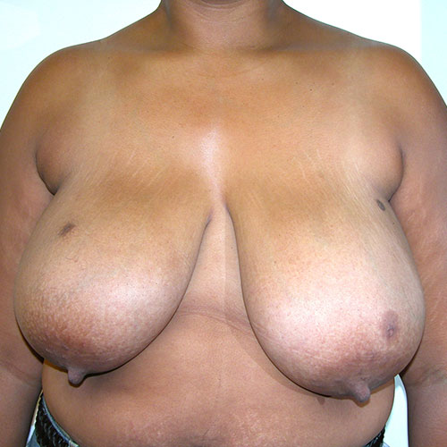 Breast Reduction 40 Before Photo