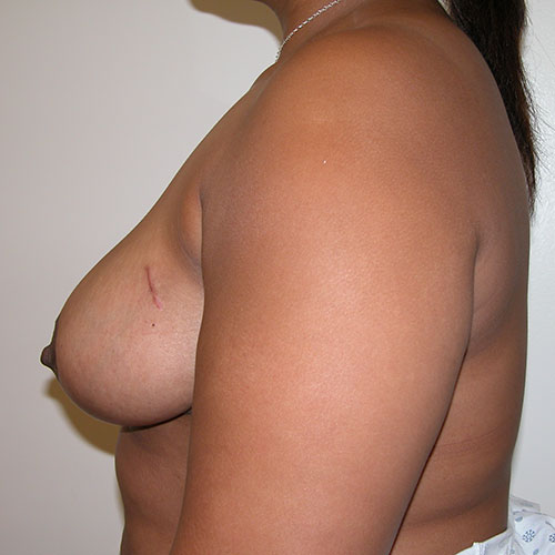 Breast Reduction 40 After Photo