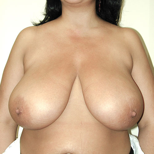Breast Reduction 41 Before Photo