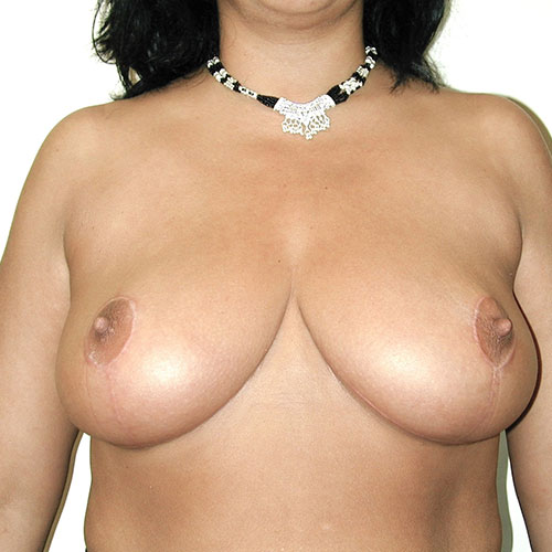 Breast Reduction 41 After Photo
