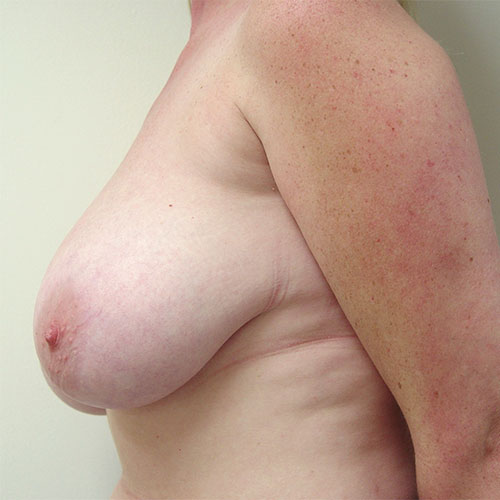 Breast Reduction 42 Before Photo