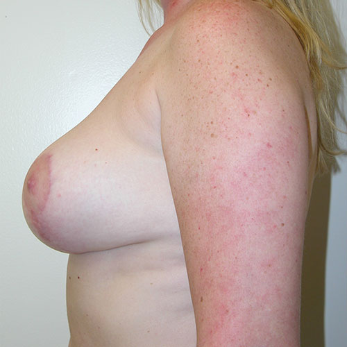 Breast Reduction 42 After Photo
