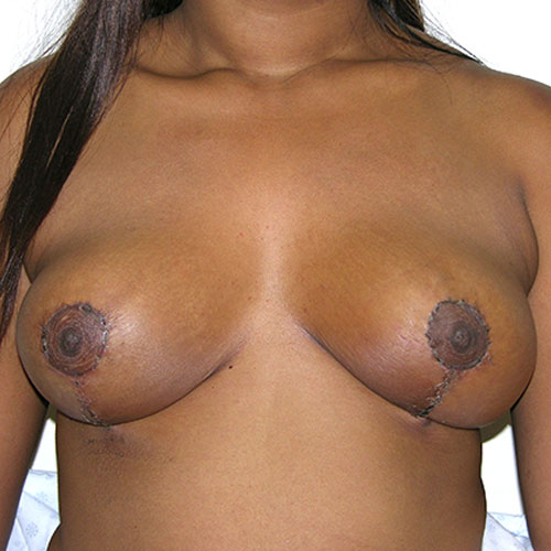 Breast Reduction 43 After Photo