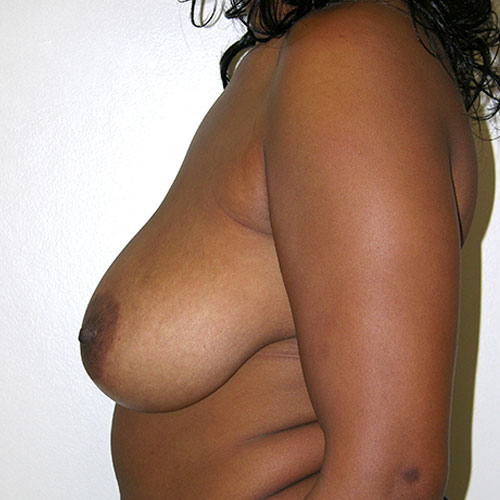 Breast Reduction 43 Before Photo