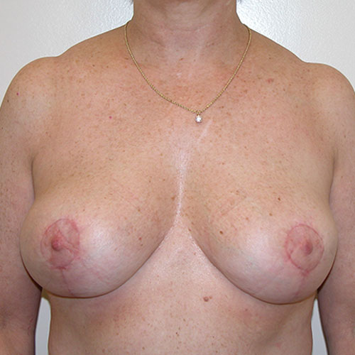 Breast Reduction 44 After Photo