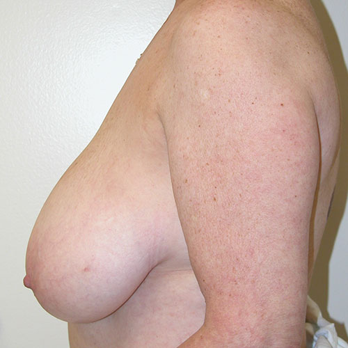 Breast Reduction 44 Before Photo
