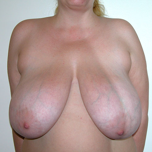 Breast Reduction 45 Before Photo