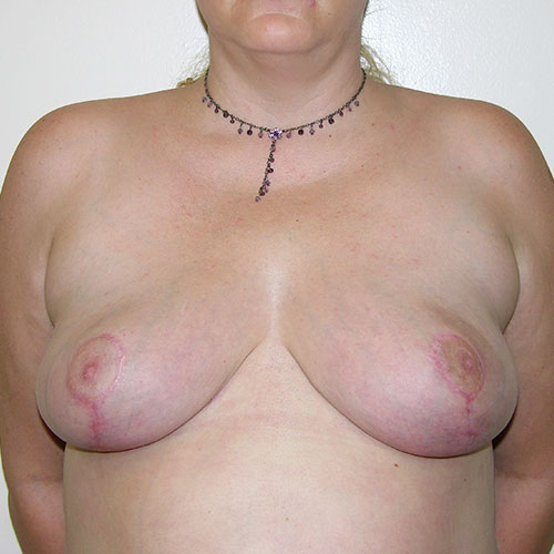 Breast Reduction 45 After Photo