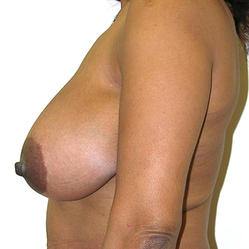 Breast Reduction 46 Before Photo