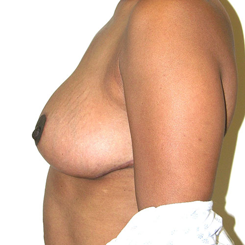 Breast Reduction 46 After Photo