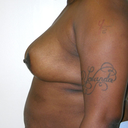 Breast Reduction 47 After Photo