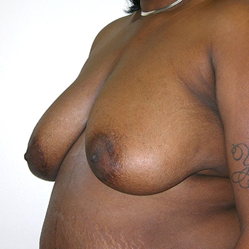 Breast Reduction 47 Before Photo