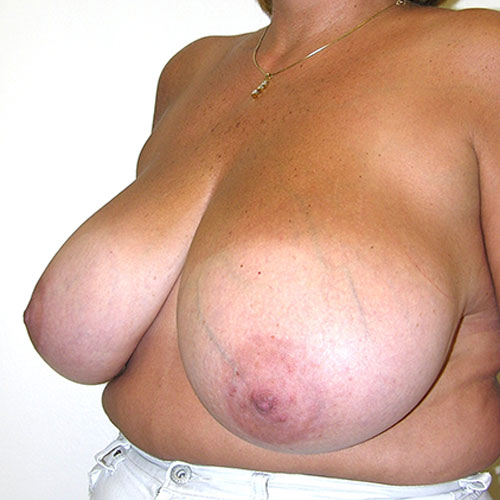 Breast Reduction 48 Before Photo