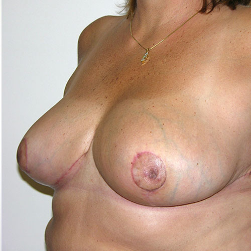 Breast Reduction 48 After Photo