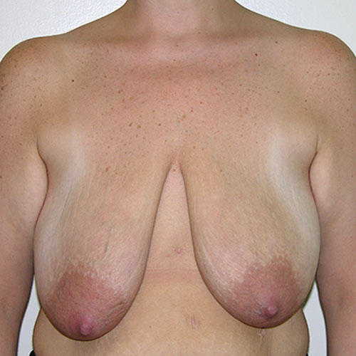 Breast Reduction 49 Before Photo