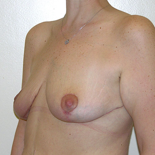 Breast Reduction 49 After Photo