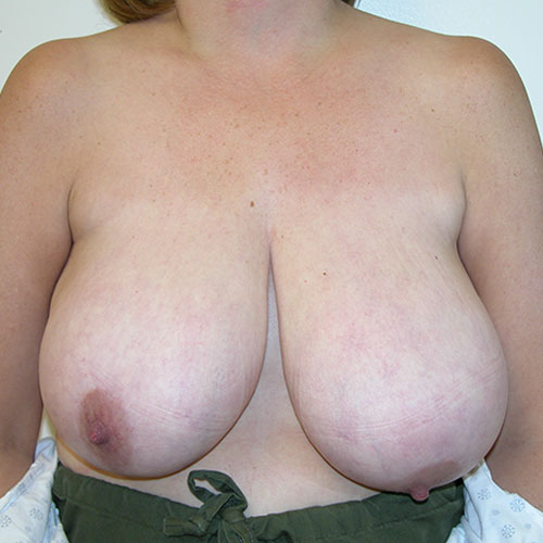 Breast Reduction 50 Before Photo