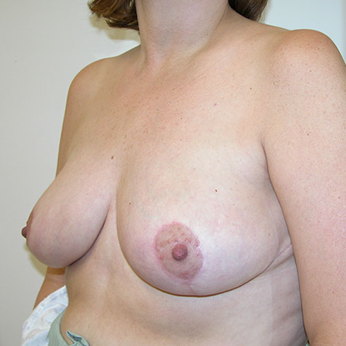 Breast Reduction 50 After Photo