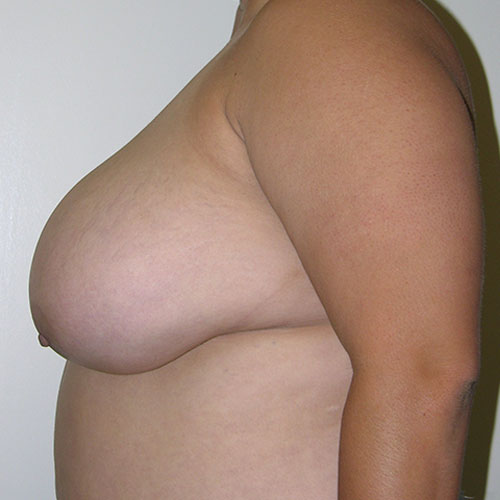 Breast Reduction 51 Before Photo