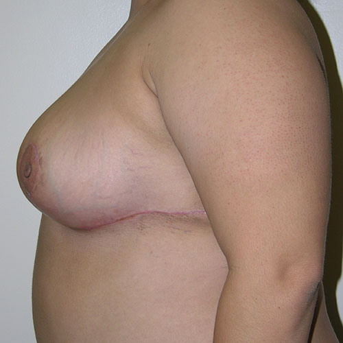 Breast Reduction 51 After Photo