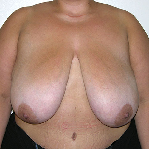 Breast Reduction 52 Before Photo