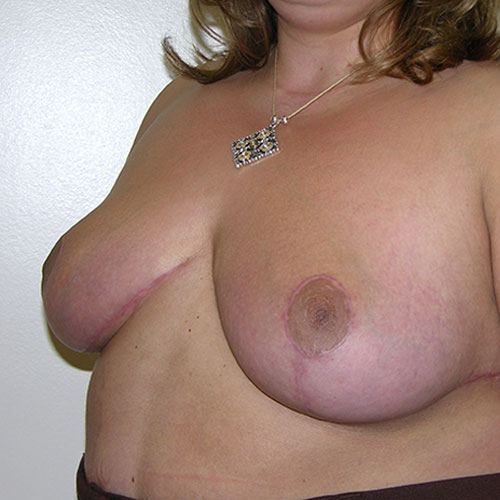 Breast Reduction 52 After Photo